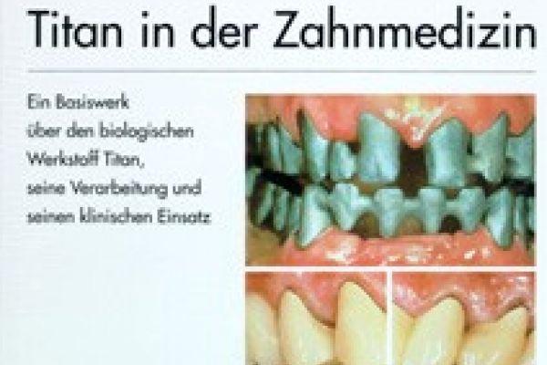 TITAN in der Zahnmedizin( Wirz/ Bischoff)